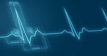NHS, Heart, ECG